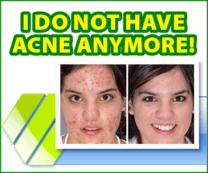 Derminax - pimples