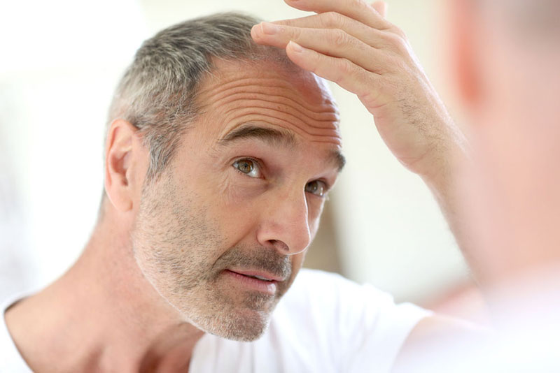 Is hair loss related to age?