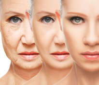Botox, fillers or wrinkle creams?