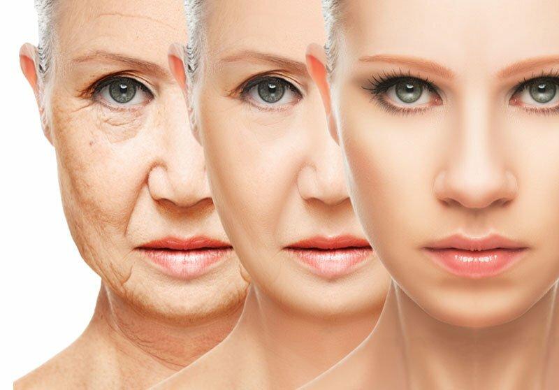Botox, Füllstoffe oder Falten Cremes?
