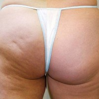 Cellulite and mesotherapy