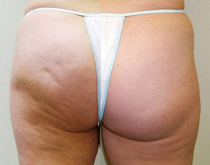 Cellulite en mesotherapie