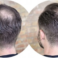Herbs better than medications for hair loss?