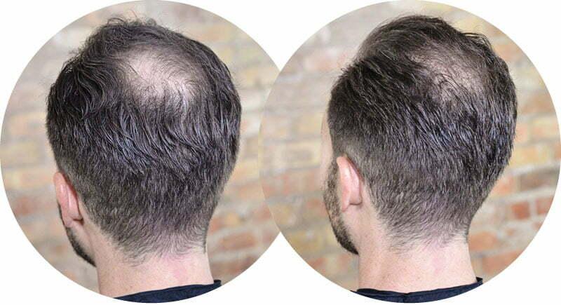 Biljke bolje od lijekova za gubitak kose?