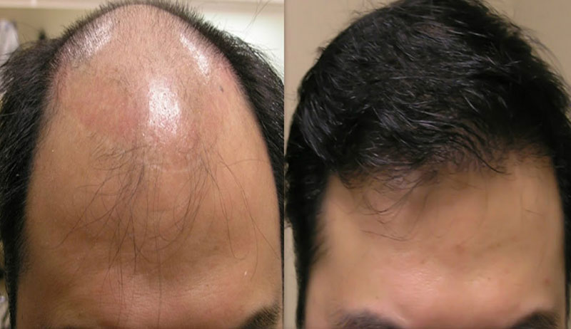 Kräuter, die Haarausfall verhindern