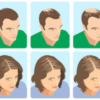 What does the pharmacy offer for androgenetic alopecia?