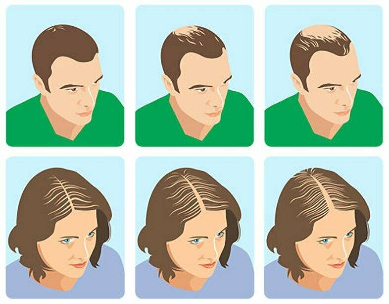 Che cosa offre la farmacia per l'alopecia androgenetica?
