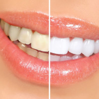 Teeth whitening for free