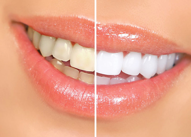 Sbiancamento dei denti gratis