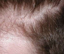 Natural remedies for hair loss