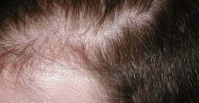 Saç dökülmesi için doğal ilaçlar