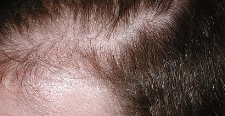 Remedios naturales para la pérdida de cabello