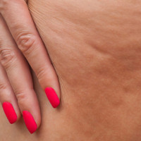 Water cellulite or fat cellulite