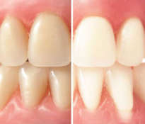 Basics of teeth whitening