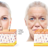 Nutrition of the skin that is aging