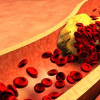 High blood sugar and dementia