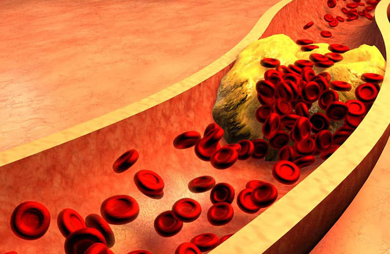 Vysoká hladina cukru v krvi a demence