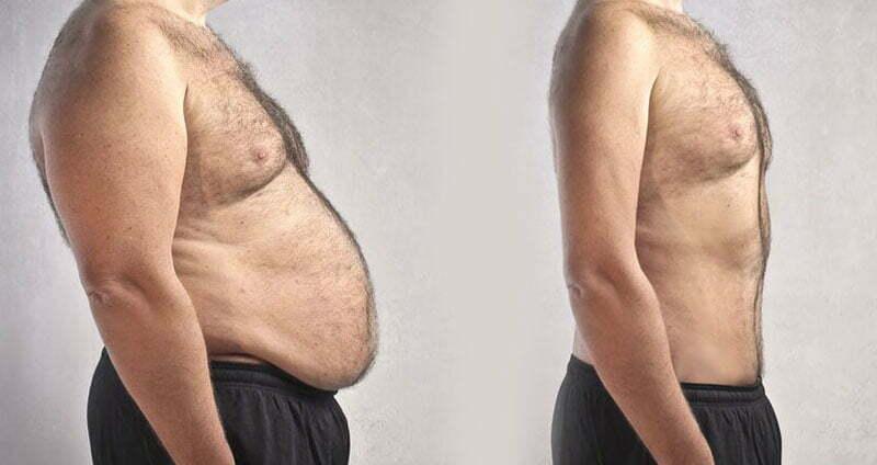 Il est temps de dire au revoir à l'obésité