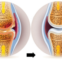 A new trend in the treatment of joint pain and stiffness