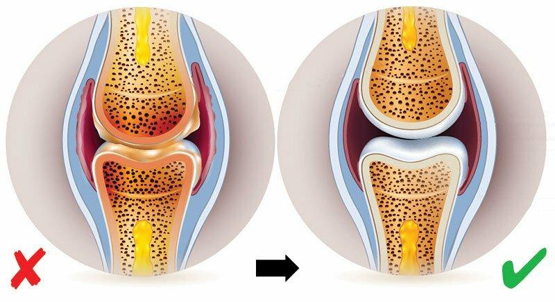 Una nuova tendenza nel trattamento del dolore e della rigidità articolari