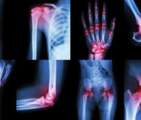 How to support the treatment of arthritis?