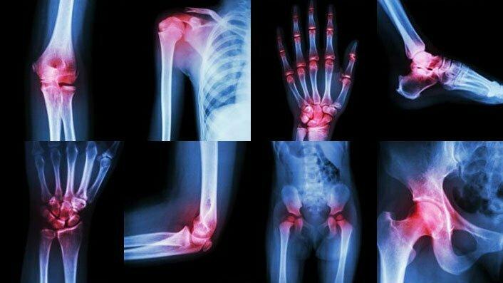 Jak podpořit léčbu artritidy?