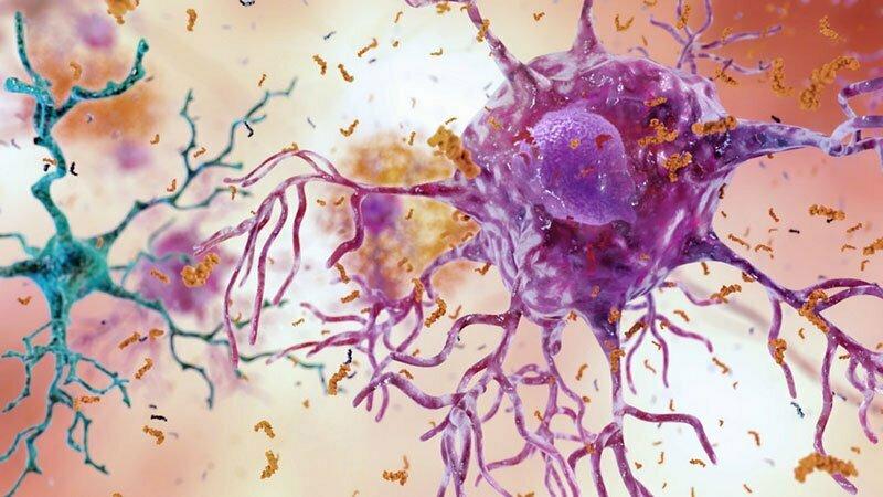 Как да се възстанови здравето на мозъка?