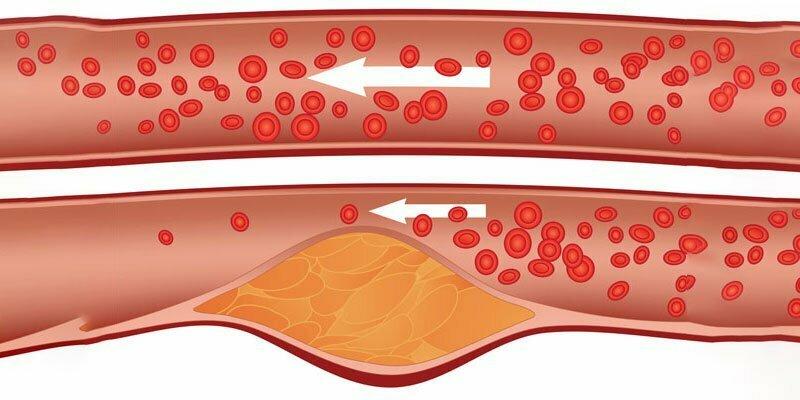 Натуральные средства от повышенного холестерина