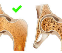 Natural methods for osteoporosis