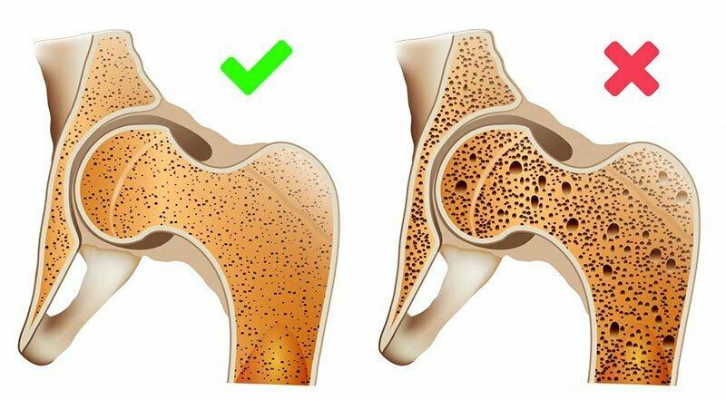 Естествени методи за остеопороза