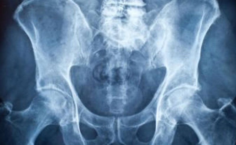 强化骨骼,预防骨质疏松症